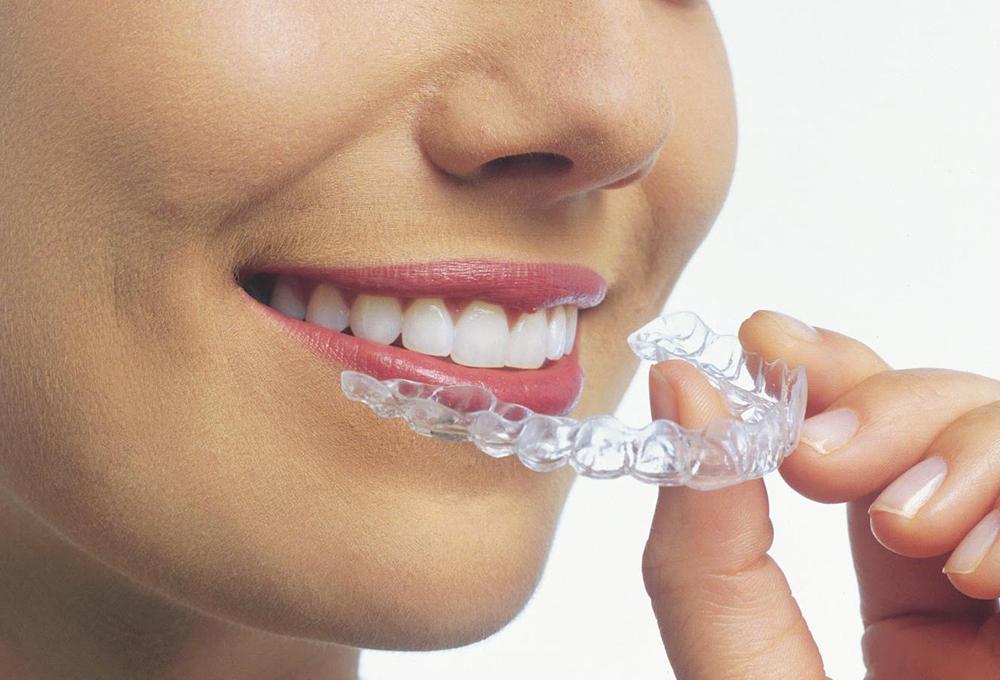 Cinco productos básicos si llevas ortodoncia - The Luxonomist 4ab534dac0bc